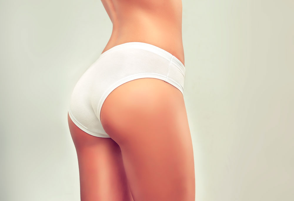 Buttocks: Gluteoplasty