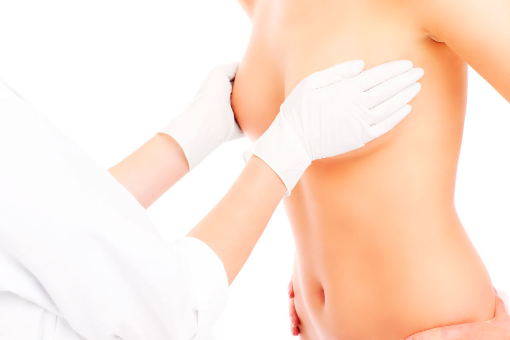 Breast augmentation: Mammoplasty augmentation