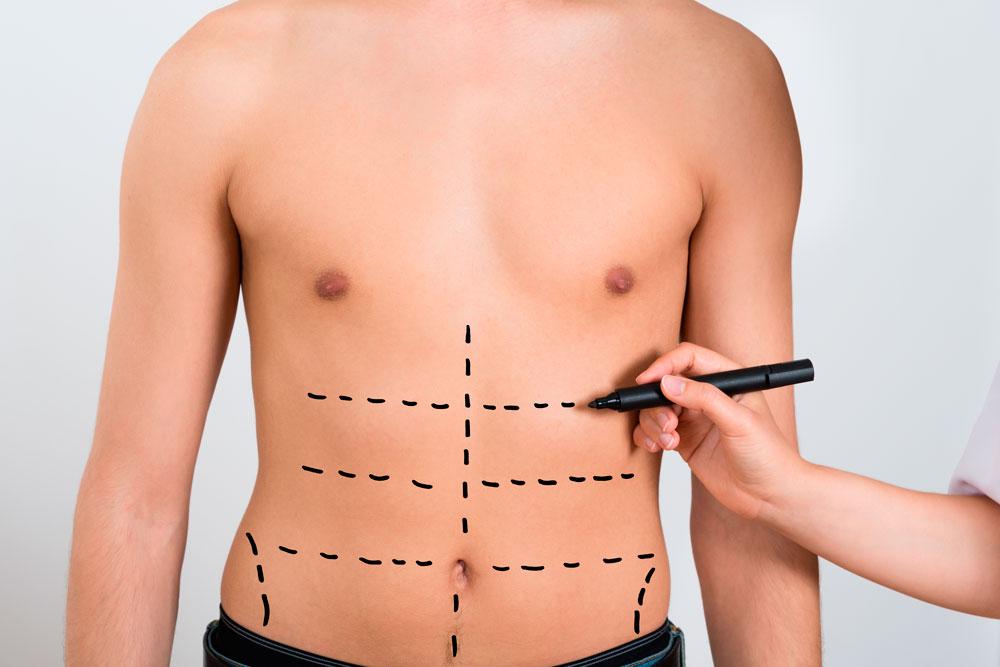 La Salud a Toda Costa – Liposucción