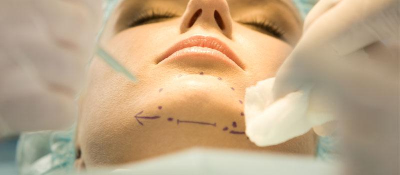 Cirugía lifting facial Marbella