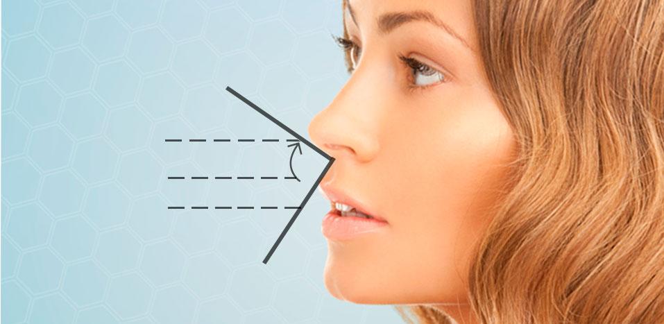 Cirugía de la nariz en Málaga