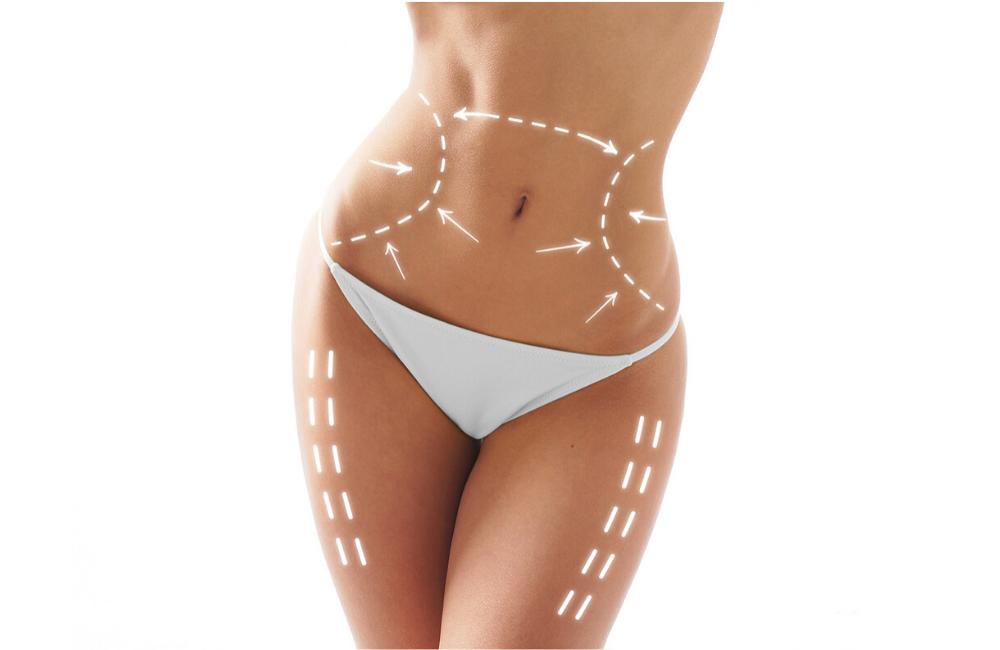 ¿Qué es la Liposucción Abdominal?