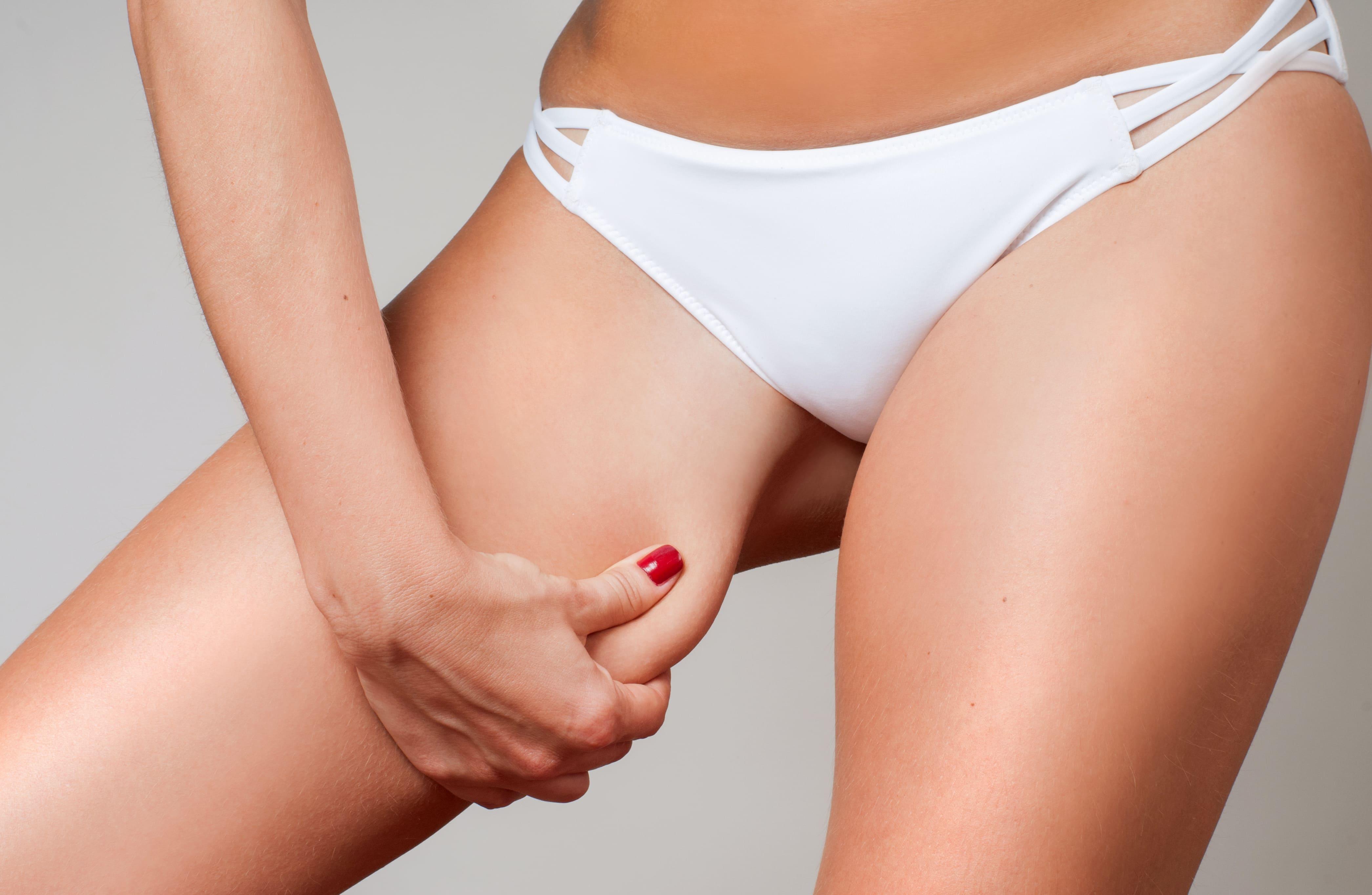 ¿Qué es el lifting de muslos o cruroplastia?